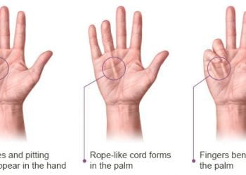 Dupuytren's Contracture Symptoms and Treatment
