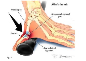 Skier's Thumb Symptoms