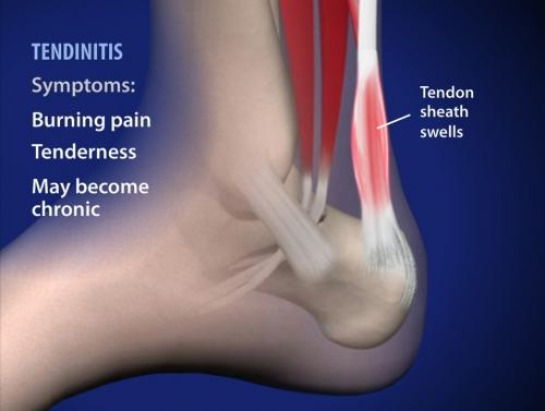 achillis tendonitis