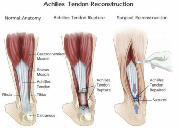 Achilles Tendon Rupture Recovery Time