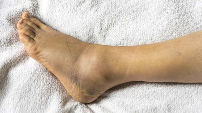 Ankle Sprain Symptoms
