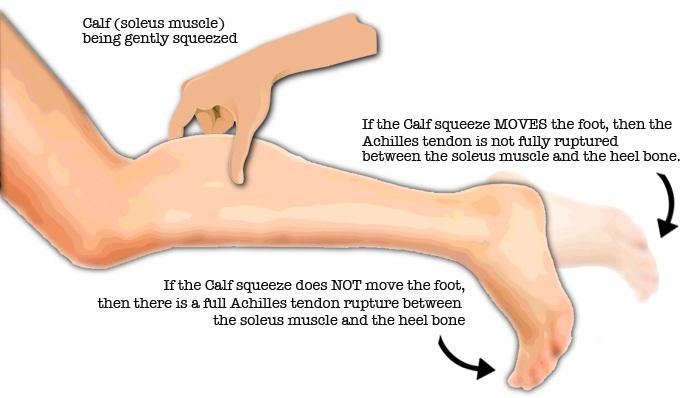 Ruptured Achilles Tendon Test
