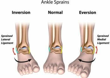 ankle sprain ligament