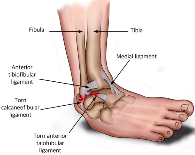 ankle sprain pictures