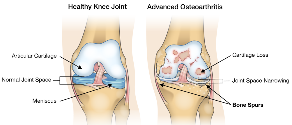 bone on bone knee pictures