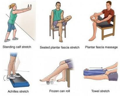 Arch Pain Stretches