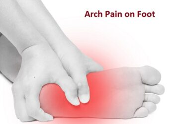Arch Pain on Foot Symptoms