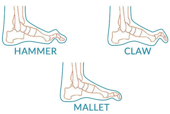 Hammer, Claw & Mallet Toe