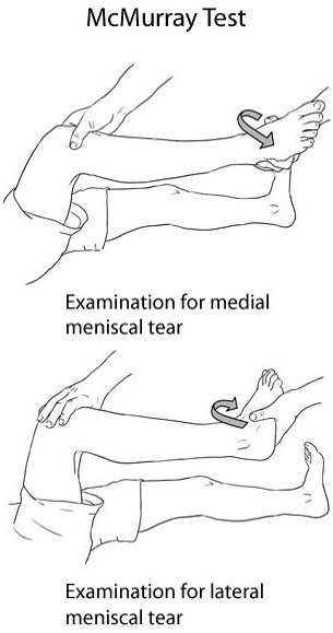 Meniscus Tear Test