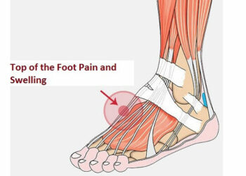 Top of the Foot Pain and Swelling