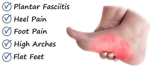 Arch Pain On Foot Symptoms Causes Treatment Plan Your Health Guideline