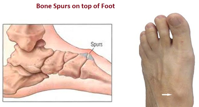 Bone Spurs on top of Foot