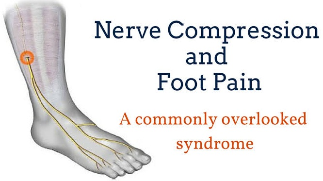 nerve pain on top of foot