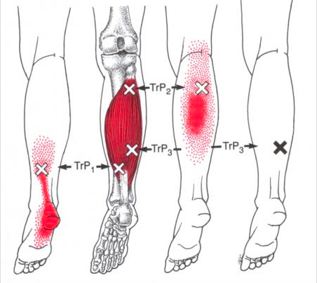Trigger Point Plantar Fasciitis