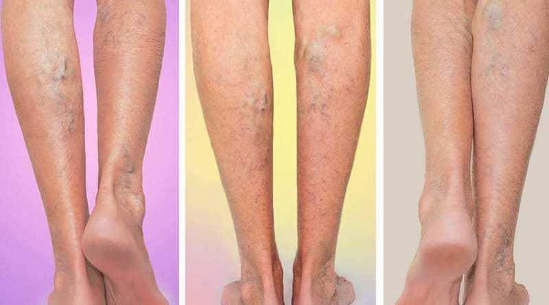 varicose veins symptoms