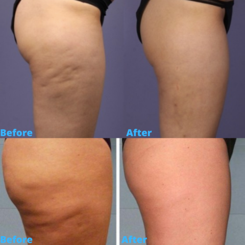 Cupping For Cellulite Before And After Pictures