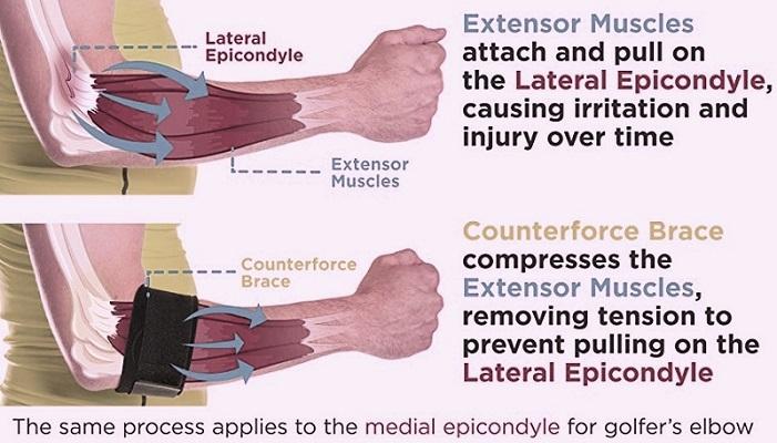 How Does Tennis Elbow Brace Work