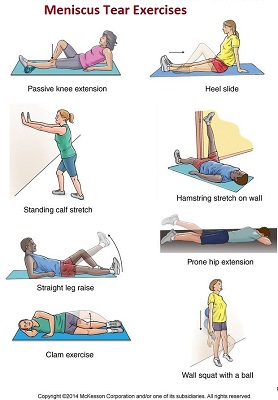 Meniscus Tear Exercises