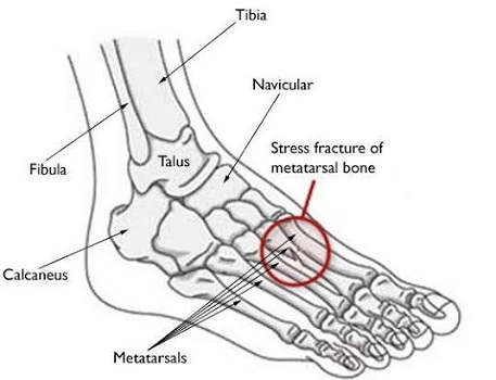 Stress Fractures on the Feet Bones