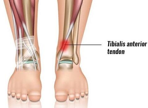 Tibialis Anterior Tendonitis