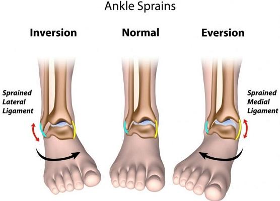 ankle sprain ligament