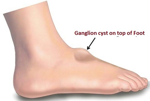 ganglion cyst on top of foot