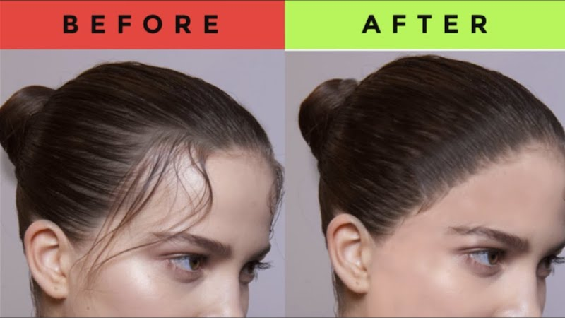 collagen hair growth before and after