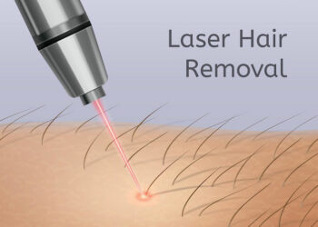 Laser Hair Removal At Home For Dark Skin